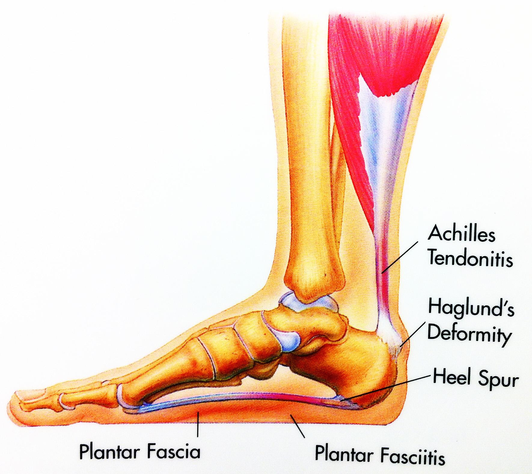 Calcaneal Spur Symptoms And Treatment