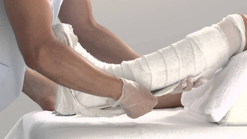 Rules For The Development Of Legs After Gypsum Remove
